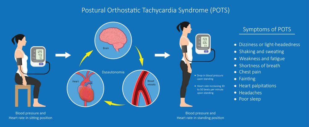 Postural Orthostatic Tachycardia Syndrome (POTS)